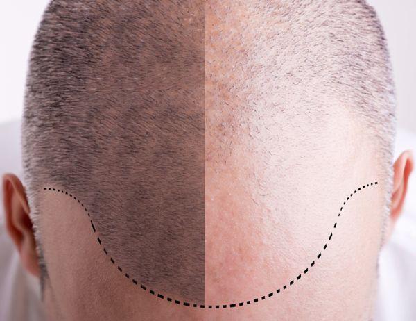 Trapianto di capelli: funziona davvero?